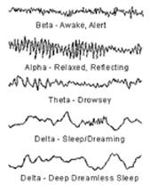 brain wave graph